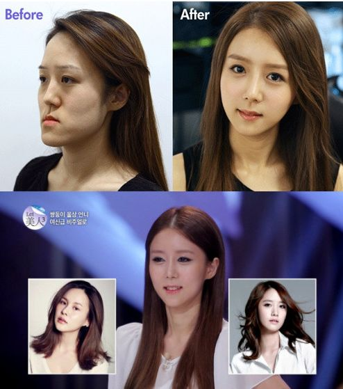 Woman Receives Serious Plastic Surgery on Korean Make-Over Show