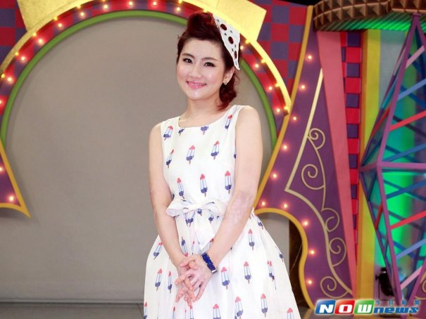S.H.E's Selina Jen Still Insecure Of Appearance After Extreme Burns 4 Years Ago